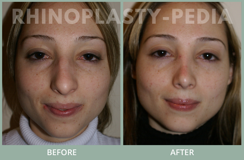 female rhinoplasty patient before and after photo 16