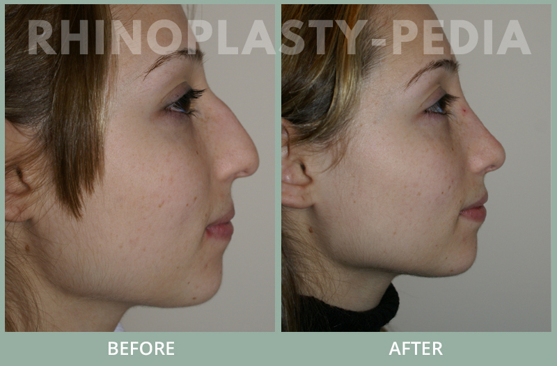 rhinoplasty female patient before and after photo set 104