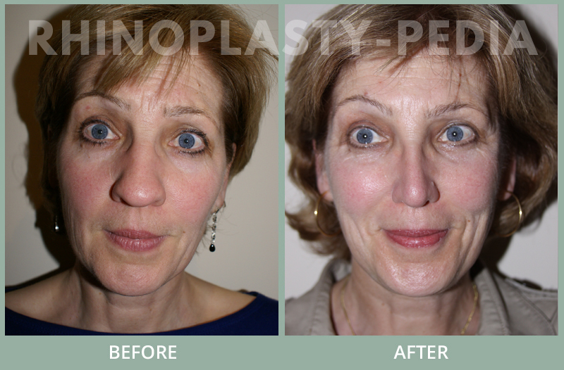 female rhinoplasty patient before and after photo 22