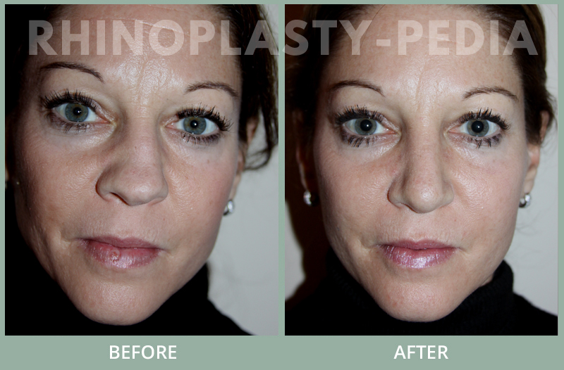 female rhinoplasty patient before and after photo 23