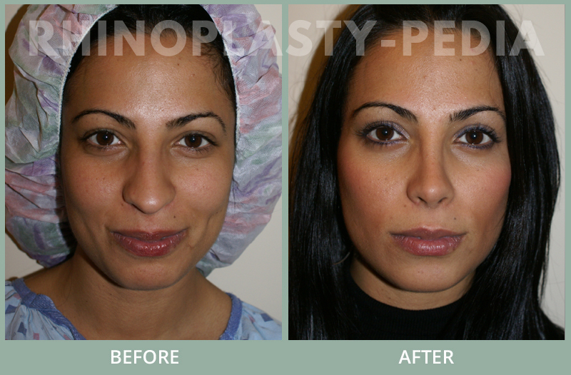 rhinoplasty female patient before and after photo set 109