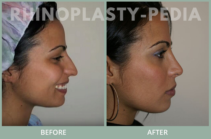 rhinoplasty female patient before and after photo set 110