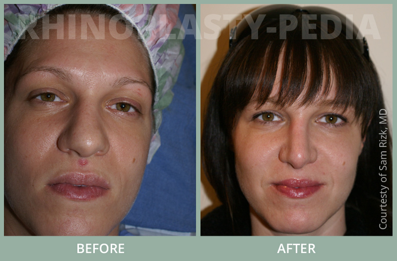 rhinoplasty female patient before and after thumb photo set 63