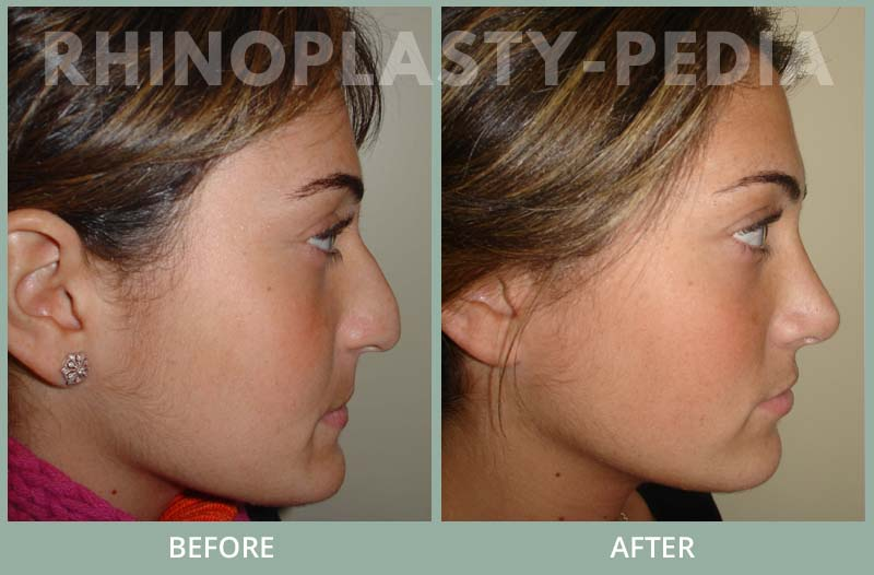 rhinoplasty female patient before and after photo set 111