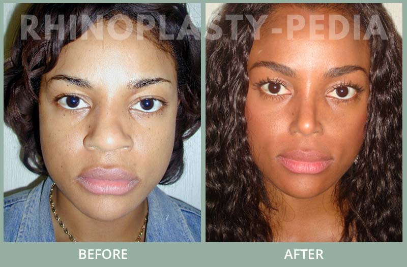 female rhinoplasty patient before and after photo 9