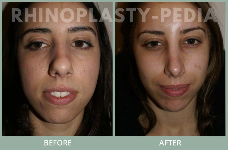 rhinoplasty female patient before and after photo set 114