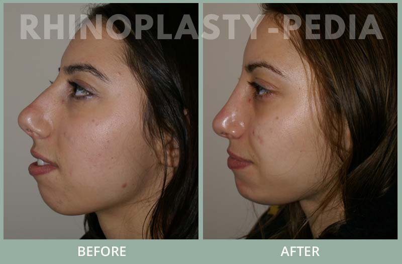 rhinoplasty female patient before and after photo set 115