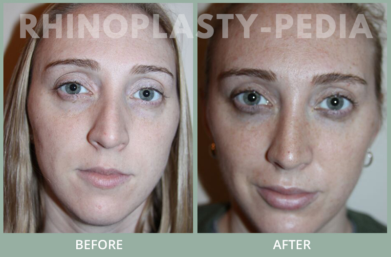 rhinoplasty female patient before and after photo set 119