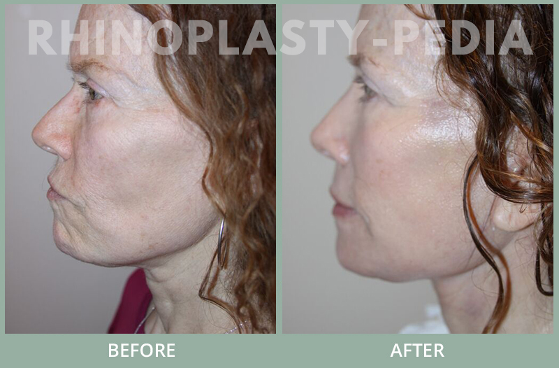 rhinoplasty female patient before and after photo set 121