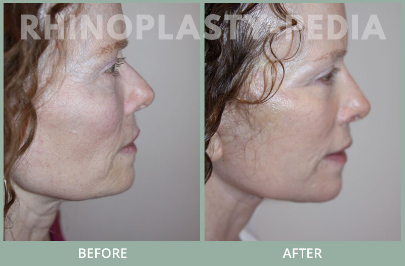 rhinoplasty female patient before and after photo set 122