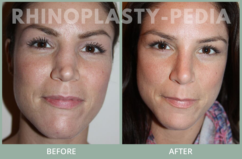 female rhinoplasty patient before and after photo 38