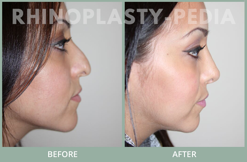 rhinoplasty female patient before and after photo set 126