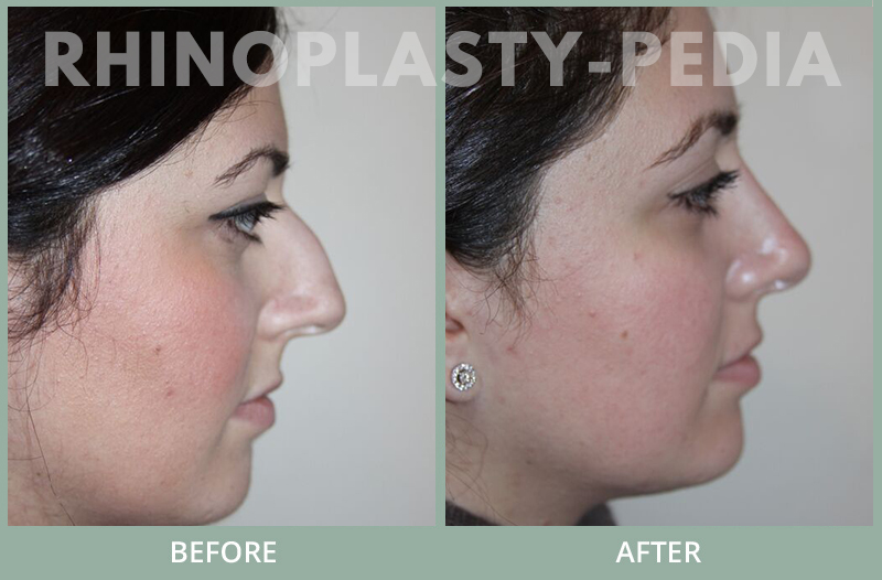 female rhinoplasty patient before and after photo 40