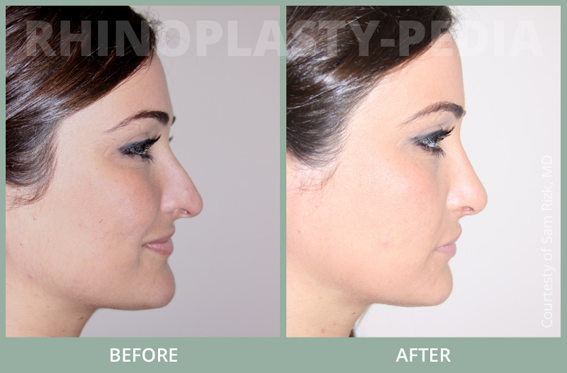 rhinoplasty female patient before and after photo set 61