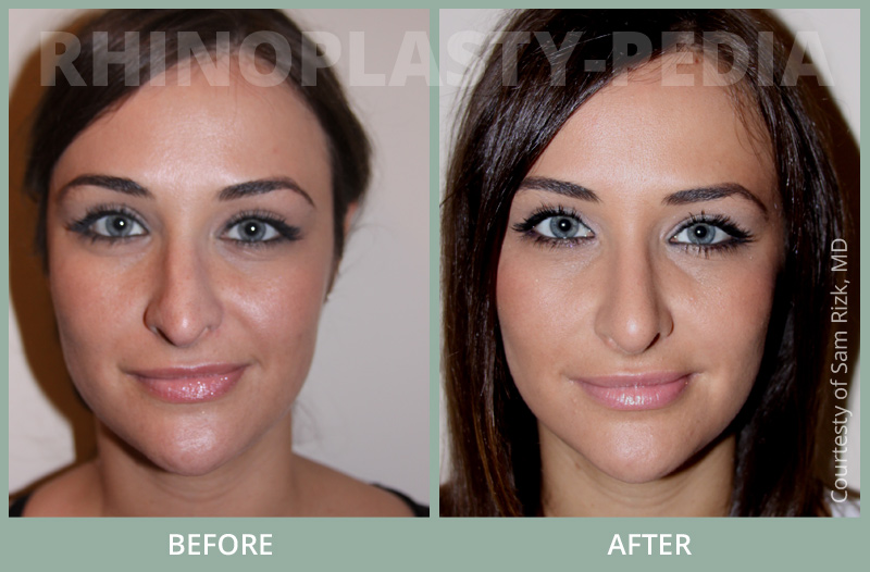 female rhinoplasty patient before and after photo 10