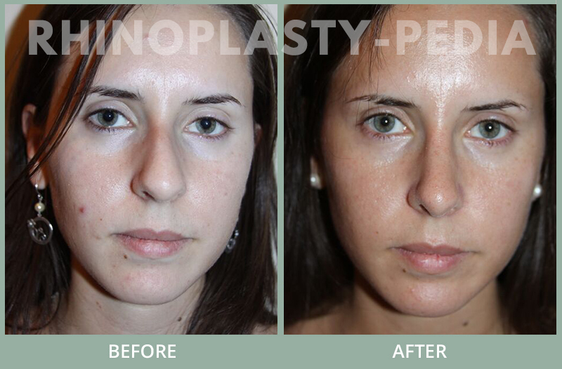 rhinoplasty female patient before and after photo set 128