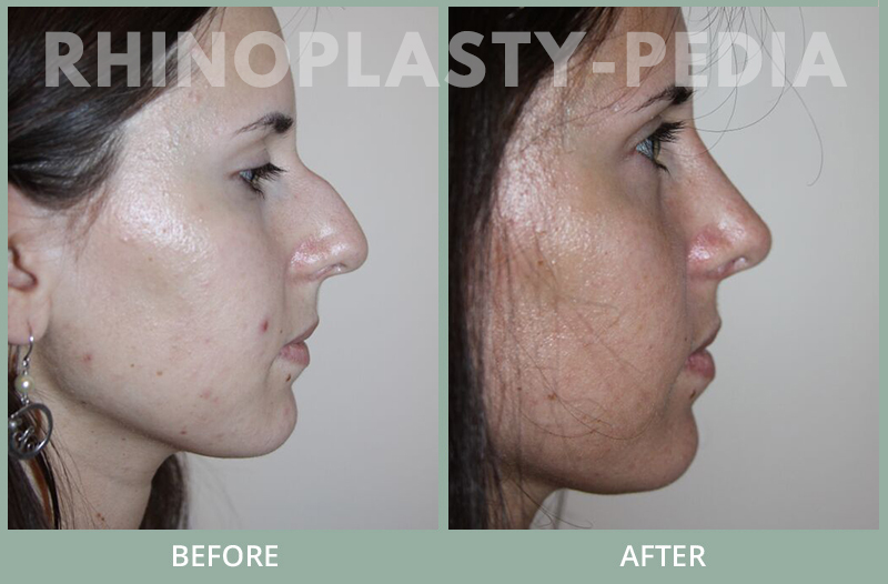 rhinoplasty female patient before and after photo set 129