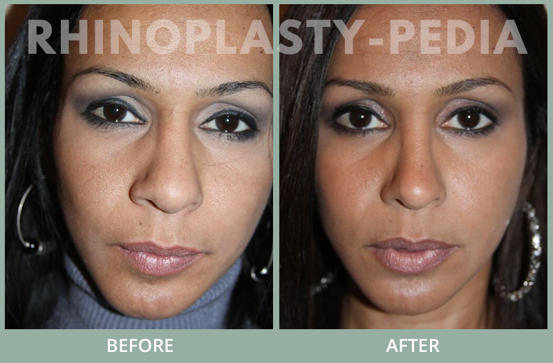 female rhinoplasty patient before and after photo 42