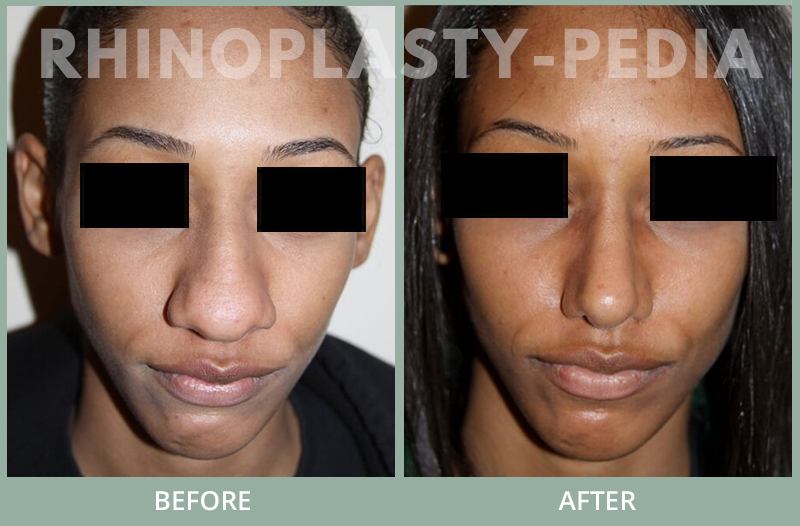 female rhinoplasty patient before and after photo 44