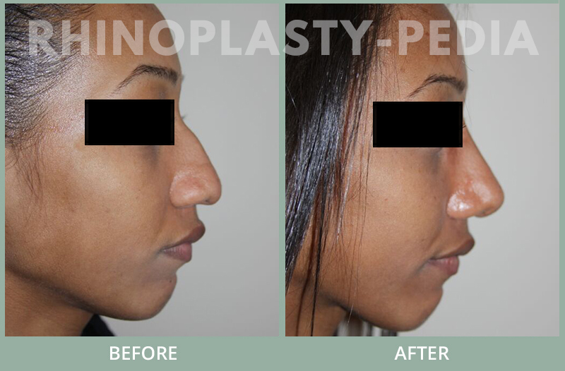 rhinoplasty female patient before and after photo set 74