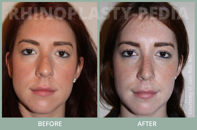 female rhinoplasty patient before and after photo 4