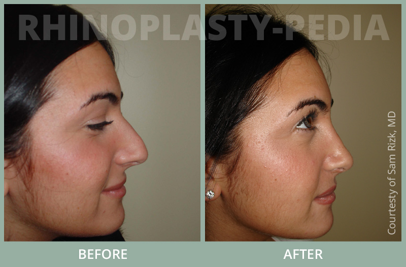 rhinoplasty female patient before and after photo set 58