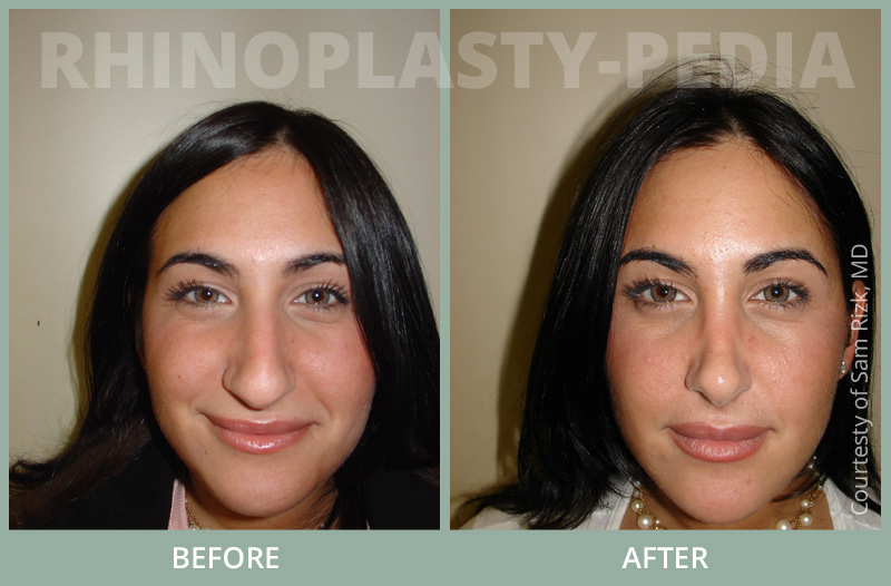 rhinoplasty female patient before and after photo set 59