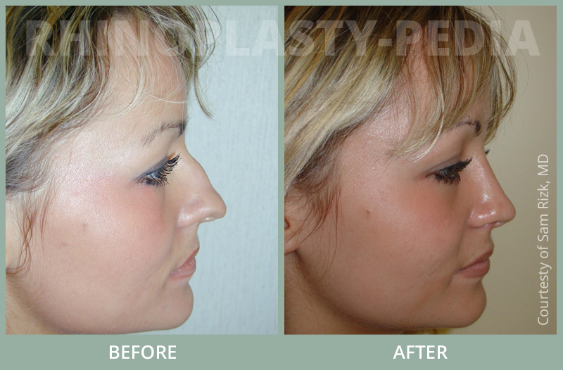 female rhinoplasty patient before and after photo set 17
