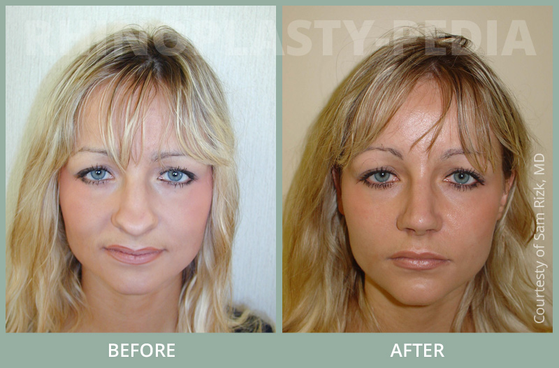 female rhinoplasty patient before and after photo 21