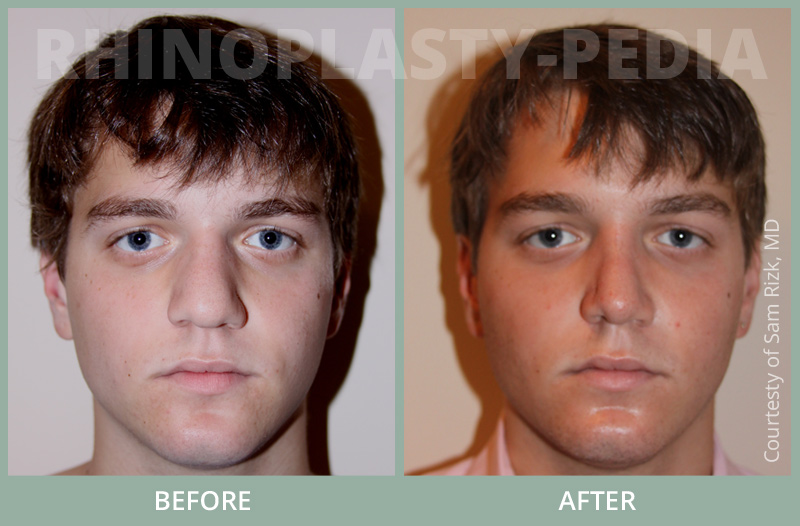 male rhinoplasty patient before and after photo 1