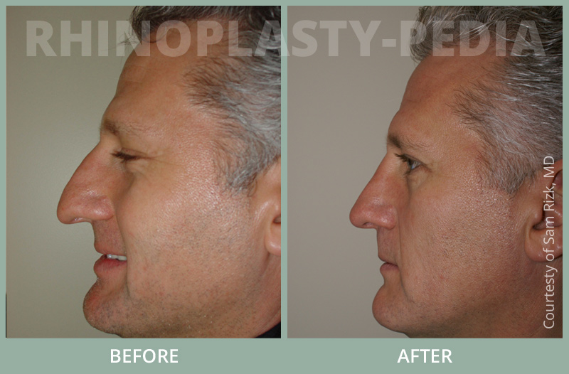 rhinoplasty male patient before and after photo set 31