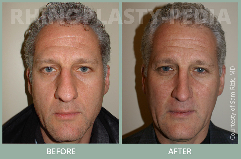rhinoplasty male patient before and after photo set 32
