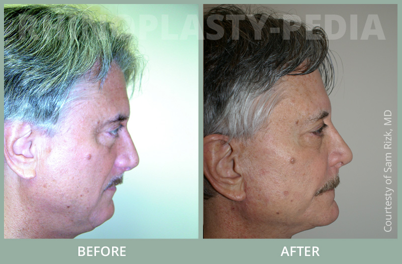 rhinoplasty male patient before and after photo set 30