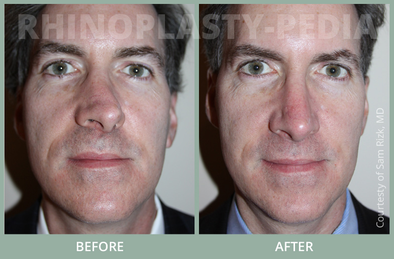 male rhinoplasty patient before and after photo 19