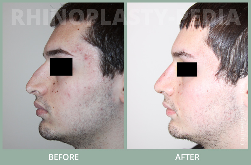rhinoplasty male patient before and after photo set 20