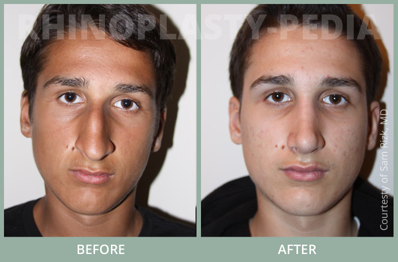 male rhinoplasty patient before and after photo 25