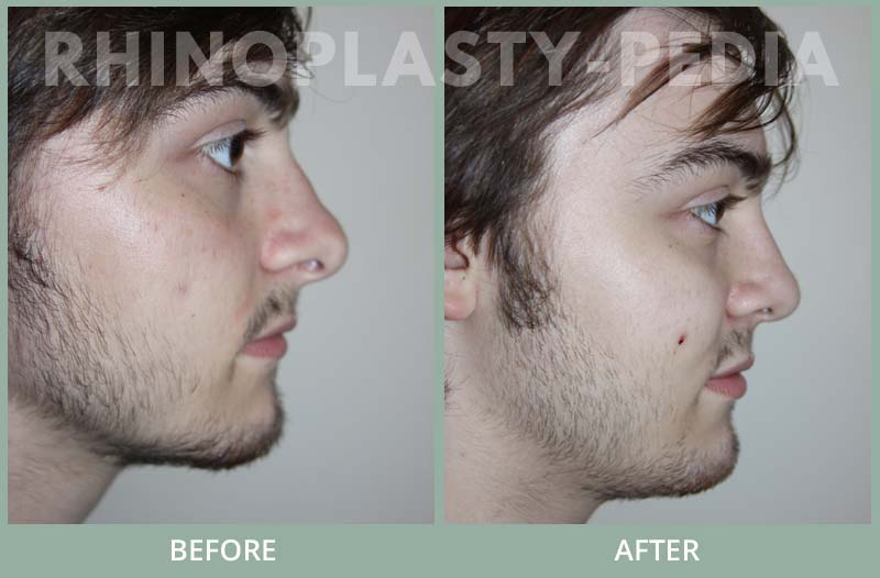 male rhinoplasty patient before and after photo 9
