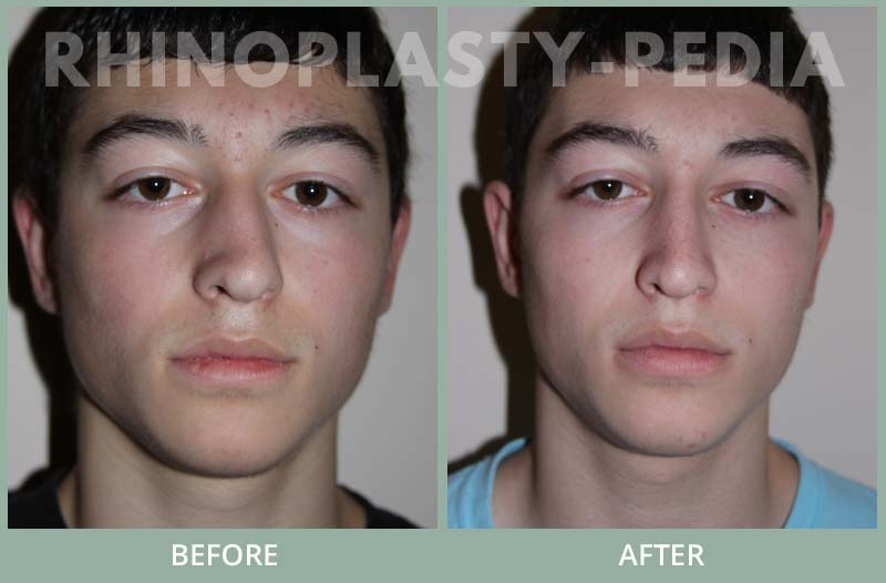 rhinoplasty male patient before and after photo set 34