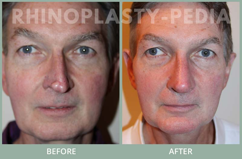 male rhinoplasty patient before and after photo 12