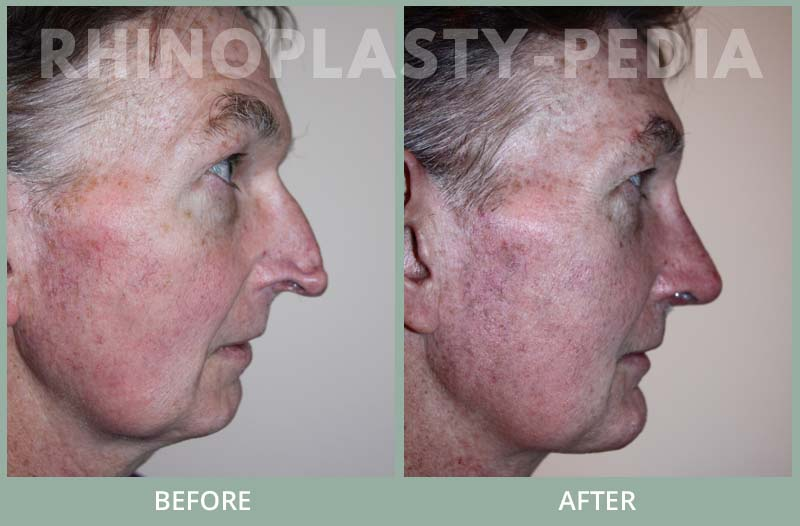 rhinoplasty male patient before and after photo set 38