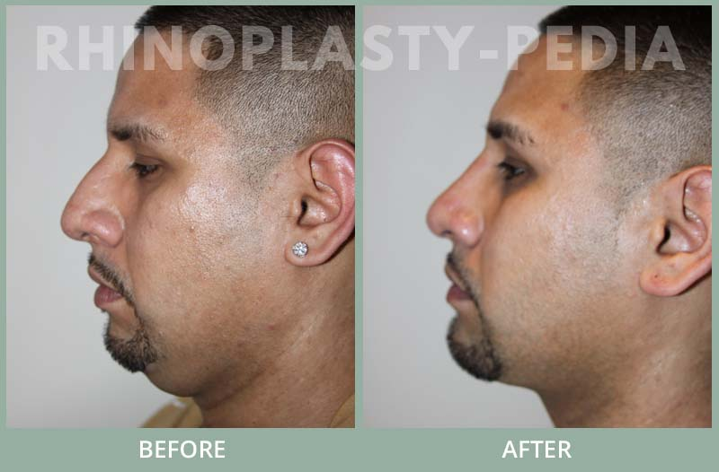male rhinoplasty patient before and after photo 13