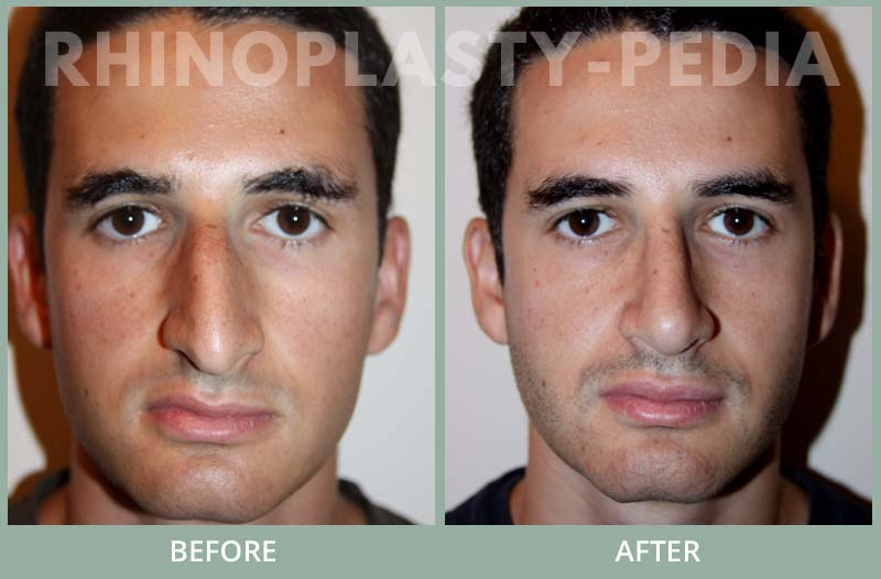 male rhinoplasty patient before and after photo 15