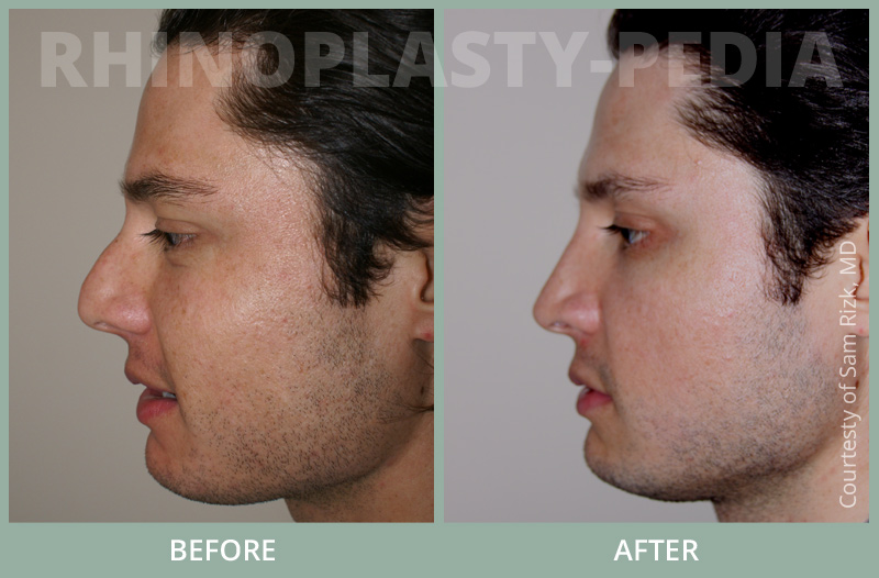 rhinoplasty male patient before and after photo set 26