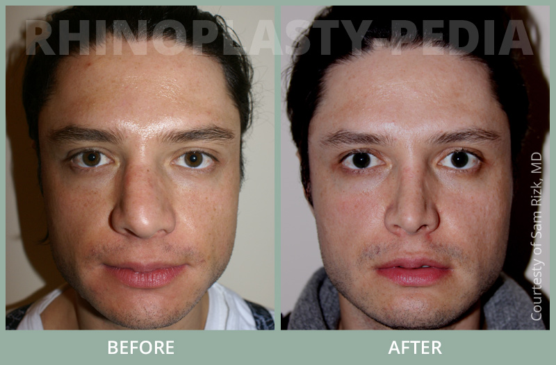 rhinoplasty male patient before and after photo set 27