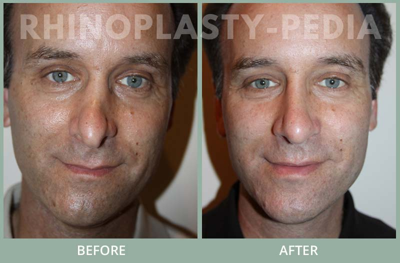male rhinoplasty patient before and after photo 17