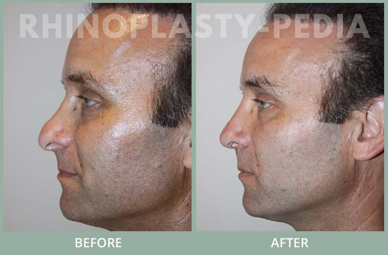rhinoplasty male patient before and after photo set 48