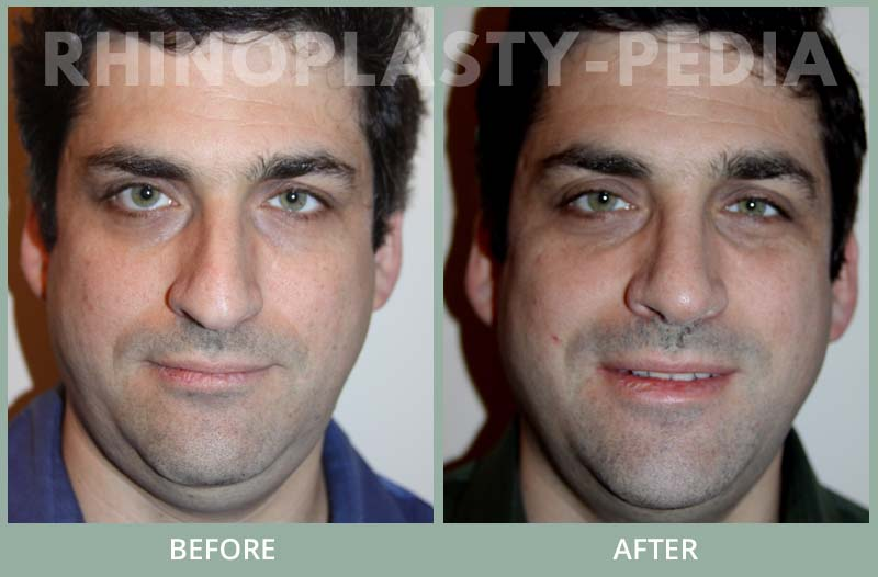 male rhinoplasty patient before and after photo 18