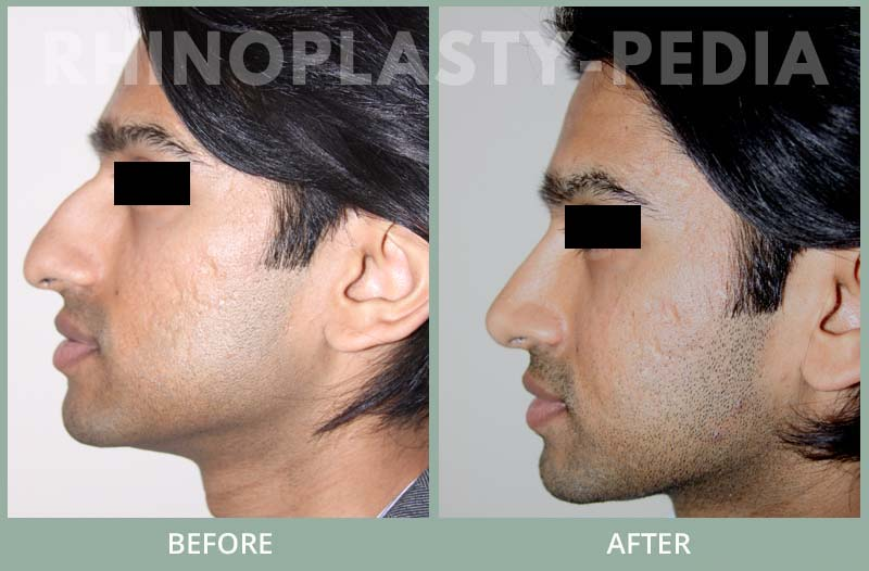 rhinoplasty male patient before and after photo set 51