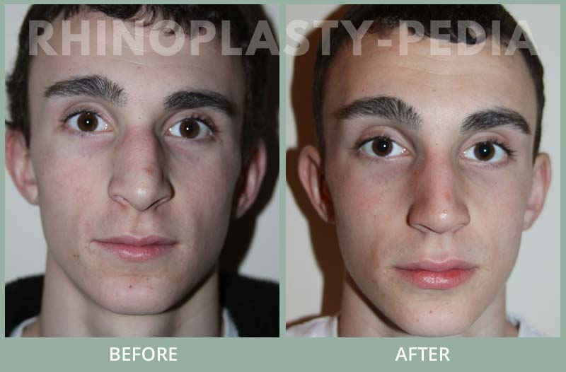 male rhinoplasty patient before and after photo 21