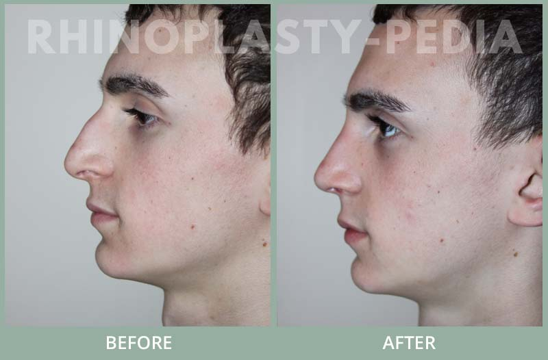 rhinoplasty male patient before and afterm set 52
